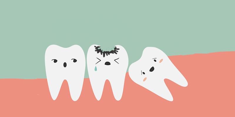 Лечение зубов по полису ОМС